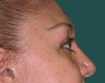 Eyelid Surgery After Photo by M. Vincent Makhlouf, MD, FACS; Des Plaines, IL - Case 9816