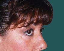 Eyelid Surgery After Photo by M. Vincent Makhlouf, MD, FACS; Des Plaines, IL - Case 9817