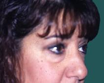 Eyelid Surgery Before Photo by M. Vincent Makhlouf, MD, FACS; Des Plaines, IL - Case 9817