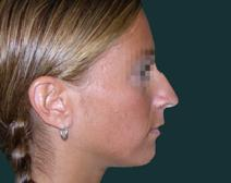 Rhinoplasty Before Photo by M. Vincent Makhlouf, MD, FACS; Des Plaines, IL - Case 9818