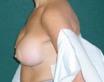 Breast Augmentation After Photo by M. Vincent Makhlouf, MD, FACS; Des Plaines, IL - Case 9821