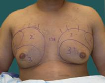 Male Breast Reduction Before Photo by M. Vincent Makhlouf, MD, FACS; Des Plaines, IL - Case 9824