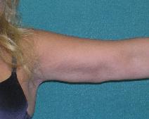 Arm Lift After Photo by M. Vincent Makhlouf, MD, FACS; Des Plaines, IL - Case 9828