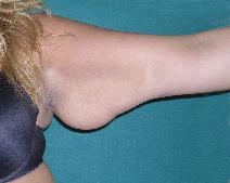 Arm Lift Before Photo by M. Vincent Makhlouf, MD, FACS; Des Plaines, IL - Case 9828