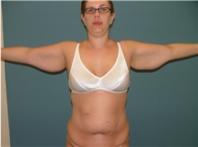 Arm Lift Before Photo by Arturo Guiloff, MD; Palm Beach Gardens, FL - Case 31149