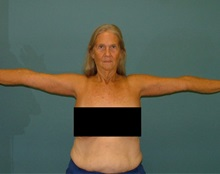 Arm Lift After Photo by Arturo Guiloff, MD; Palm Beach Gardens, FL - Case 31150