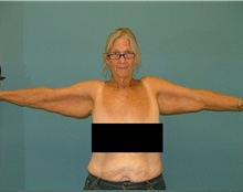 Arm Lift Before Photo by Arturo Guiloff, MD; Palm Beach Gardens, FL - Case 31150