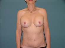 Breast Lift After Photo by Arturo Guiloff, MD; Palm Beach Gardens, FL - Case 31152