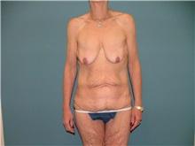Breast Lift Before Photo by Arturo Guiloff, MD; Palm Beach Gardens, FL - Case 31152