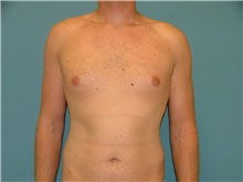 Male Breast Reduction Before Photo by Arturo Guiloff, MD; Palm Beach Gardens, FL - Case 31153