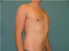 Male Breast Reduction After Photo by Arturo Guiloff, MD; Palm Beach Gardens, FL - Case 31153