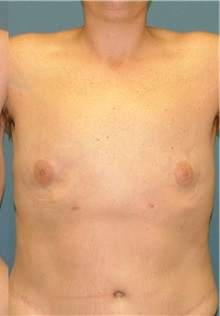 Male Breast Reduction After Photo by Arturo Guiloff, MD; Palm Beach Gardens, FL - Case 31154