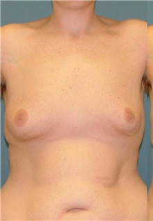 Male Breast Reduction Before Photo by Arturo Guiloff, MD; Palm Beach Gardens, FL - Case 31154
