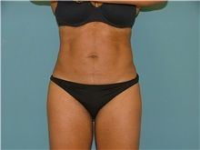 Liposuction After Photo by Arturo Guiloff, MD; Palm Beach Gardens, FL - Case 31155