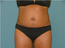 Liposuction Before Photo by Arturo Guiloff, MD; Palm Beach Gardens, FL - Case 31155