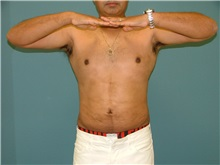 Liposuction After Photo by Arturo Guiloff, MD; Palm Beach Gardens, FL - Case 31156