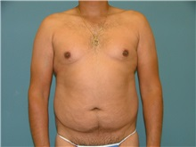 Liposuction Before Photo by Arturo Guiloff, MD; Palm Beach Gardens, FL - Case 31156