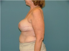 Breast Reconstruction After Photo by Arturo Guiloff, MD; Palm Beach Gardens, FL - Case 31160