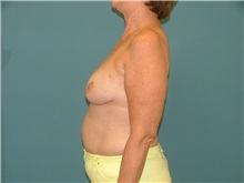 Breast Reconstruction Before Photo by Arturo Guiloff, MD; Palm Beach Gardens, FL - Case 31160