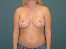 Breast Reduction After Photo by Arturo Guiloff, MD; Palm Beach Gardens, FL - Case 31161