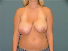 Breast Reduction Before Photo by Arturo Guiloff, MD; Palm Beach Gardens, FL - Case 31161