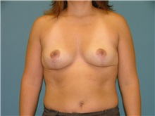 Breast Reduction After Photo by Arturo Guiloff, MD; Palm Beach Gardens, FL - Case 31162