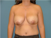 Breast Reduction Before Photo by Arturo Guiloff, MD; Palm Beach Gardens, FL - Case 31162