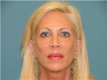 Facelift After Photo by Arturo Guiloff, MD; Palm Beach Gardens, FL - Case 31167