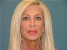 Facelift Before Photo by Arturo Guiloff, MD; Palm Beach Gardens, FL - Case 31167
