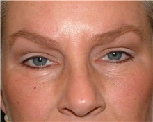 Brow Lift After Photo by Arturo Guiloff, MD; Palm Beach Gardens, FL - Case 31179