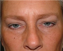 Brow Lift Before Photo by Arturo Guiloff, MD; Palm Beach Gardens, FL - Case 31179