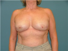 Breast Reconstruction After Photo by Arturo Guiloff, MD; Palm Beach Gardens, FL - Case 31350