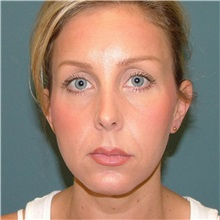 Chin Augmentation After Photo by Arturo Guiloff, MD; Palm Beach Gardens, FL - Case 34071