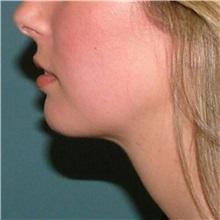 Chin Augmentation After Photo by Arturo Guiloff, MD; Palm Beach Gardens, FL - Case 34072