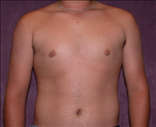 Male Breast Reduction After Photo by James Boynton, MD, FACS; Houston, TX - Case 24098