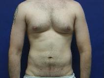 Liposuction After Photo by William Starr, MD; Camarillo, CA - Case 7362
