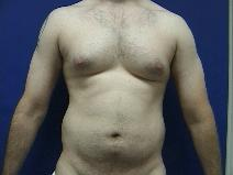 Liposuction Before Photo by William Starr, MD; Camarillo, CA - Case 7362