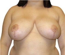Breast Reduction After Photo by David Azouz, MD; Dallas, TX - Case 34288