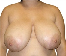 Breast Reduction Before Photo by David Azouz, MD; Dallas, TX - Case 34288