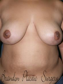Breast Lift After Photo by Marvin Shienbaum, MD; Brandon, FL - Case 29459