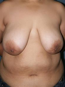 Breast Lift Before Photo by Marvin Shienbaum, MD; Brandon, FL - Case 29459