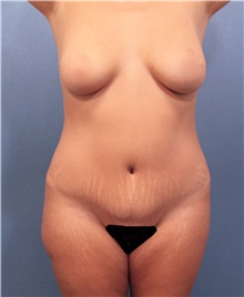 Liposuction Before Photo by Marvin Shienbaum, MD; Brandon, FL - Case 30062