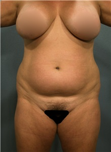 Liposuction Before Photo by Marvin Shienbaum, MD; Brandon, FL - Case 30063