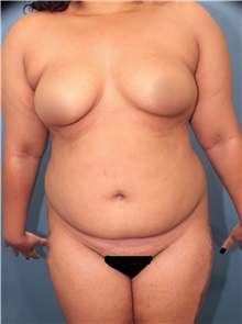 Liposuction Before Photo by Marvin Shienbaum, MD; Brandon, FL - Case 30069