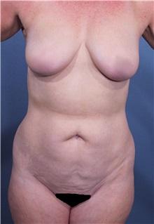 Liposuction Before Photo by Marvin Shienbaum, MD; Brandon, FL - Case 30077