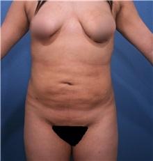 Liposuction Before Photo by Marvin Shienbaum, MD; Brandon, FL - Case 30080