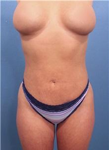 Liposuction After Photo by Marvin Shienbaum, MD; Brandon, FL - Case 30083