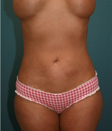Liposuction After Photo by Marvin Shienbaum, MD; Brandon, FL - Case 30316