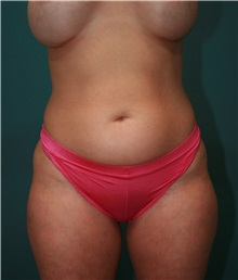 Liposuction Before Photo by Marvin Shienbaum, MD; Brandon, FL - Case 30316