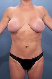 Liposuction After Photo by Marvin Shienbaum, MD; Brandon, FL - Case 30318